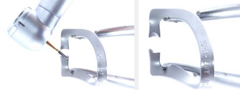 Internal bevel on the lingual jaw of the clamp and a modified 212 clamp using Dr. Guerrero's design.