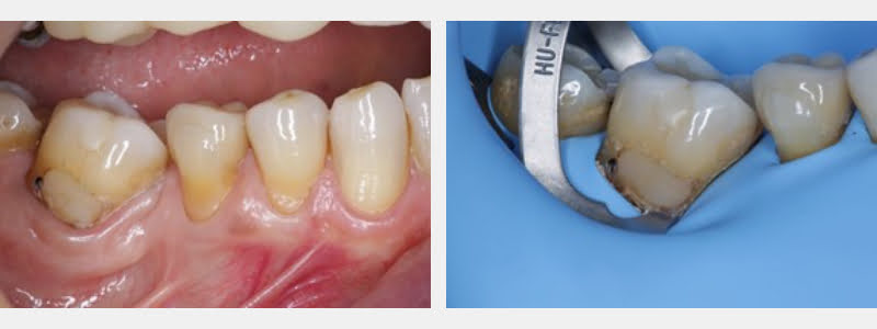 On the left is a pre-operative image. A modified 212 clamp is placed in the correct position on the right.
