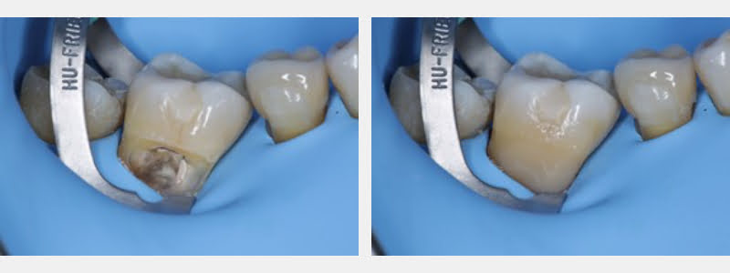 Conditioned cavity ready for the adhesive system on tooth #31. Final restoration with a thermo-modified composite.