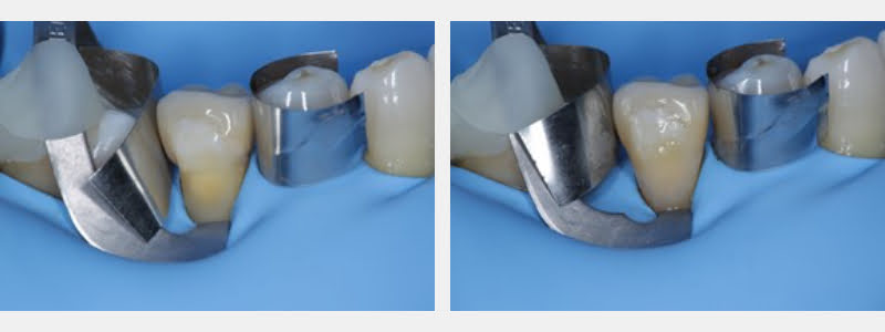Conditioned cavity ready for the adhesive system tooth #29. Final restoration with a thermo-modified composite shown on the right.