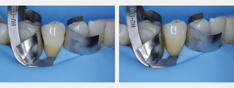 Conditioned cavity ready for the adhesive system tooth #28. Final restoration with a thermo-modified composite shown on the right.