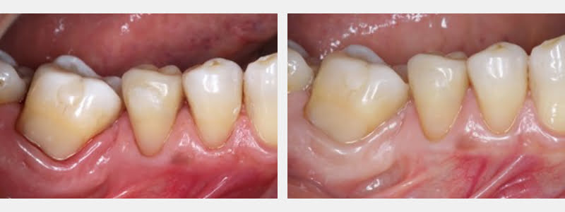 Immediate post-operative (left) and control (right).