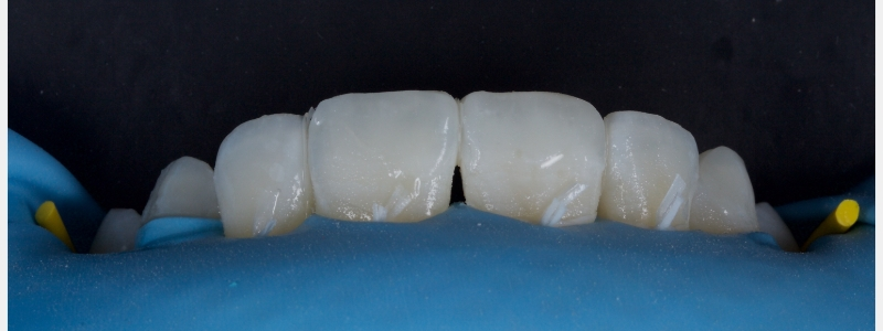 A thin layer of achromatic enamel (0.1-0.3 mm) was placed facially on the incisal third to complete the layering.