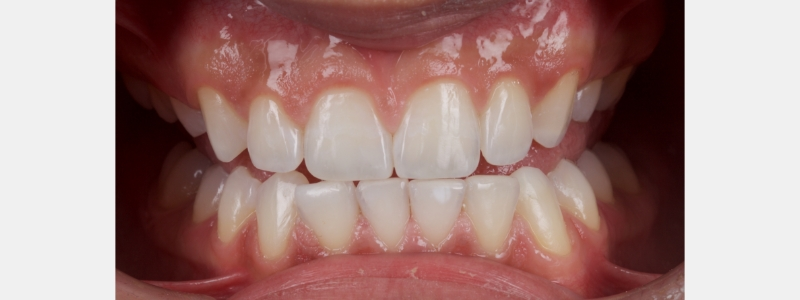 Lower anterior teeth incisal edges were restored with a single shade/single opacity direct composite.