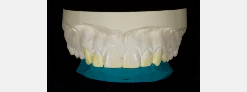 A PVS palatal stent diagnostic wax-up.