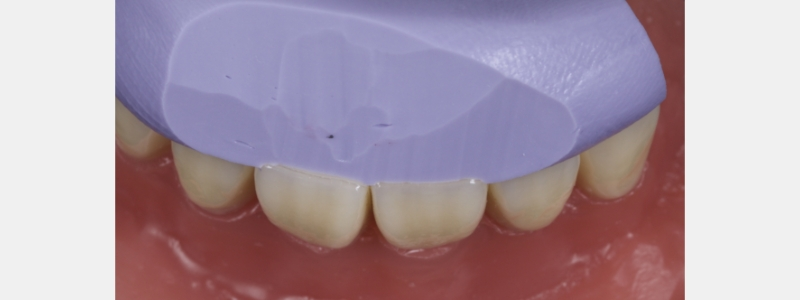 Stent trimmed midway between facial and palatal surfaces.