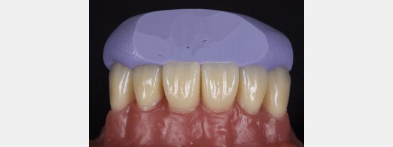 The stent in situ.