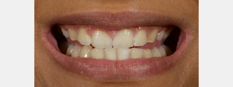 Broad smile with teeth edge-to-edge. Teeth in the esthetic zone appear short, and there is visible tooth surface loss (TSL) on the upper and lower anterior teeth.