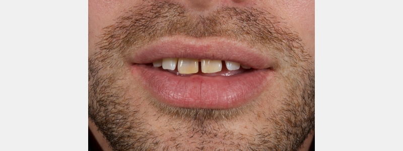 Patient presents with discolored central incisors, multiple diastemas, and a canted incisal plane.