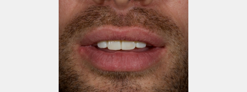 A digital scan was taken of the modified mock-up in the patient's mouth and stitched into the original scan to form the final mock-up.