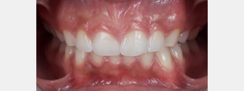 The patient's teeth were bleached to a BZero shade with a 14-day course of NGVB with 10% Carbamide Peroxide (CP).