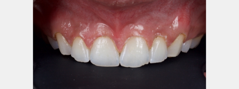 A simple gingivectomy using local anesthesia with an electrosurgery unit.