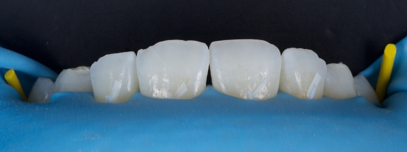 The upper anterior teeth were isolated with a latex-free rubber dam for moisture control and floss ties for improved retraction and visualization.