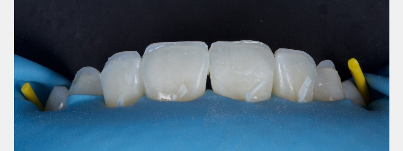 """Palatal """"shells"""" of achromatic enamel composite resin were formed on the upper anterior six teeth using a palatal stent fabricated from a diagnostic wax-up. These are seen in situ."""