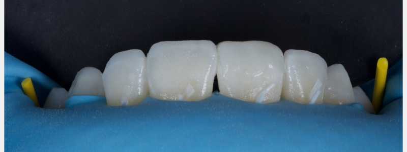 An opaque dentin layer was used to mask the transition between natural tooth structure and restoration.