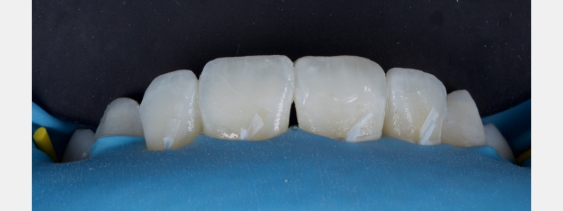 Subtle white hypocalcification effects were added at the incisal edge with flowable composite tints, alongside a grey/blue opalescence effect resin.