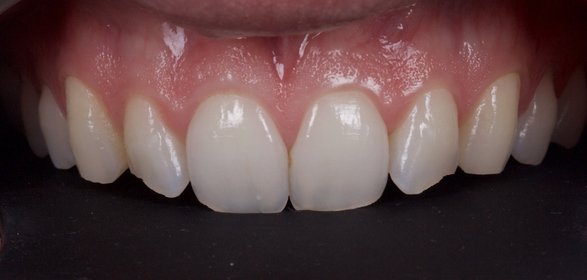 Figure 1: The patient's esthetic complaints regarded the lateral incisors and canines.