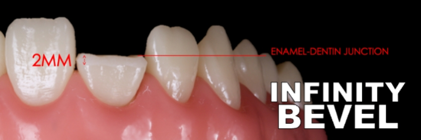 Figure 10: A coarse or medium diamond flame shaped burr (863) is used to create a 2.0mm long bevel extending from the enamel-dentin junction superiorly to a knife edge within the enamel inferiorly.