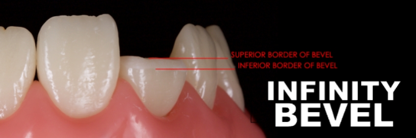 Figure 11: The inferior and superior borders of the bevel.