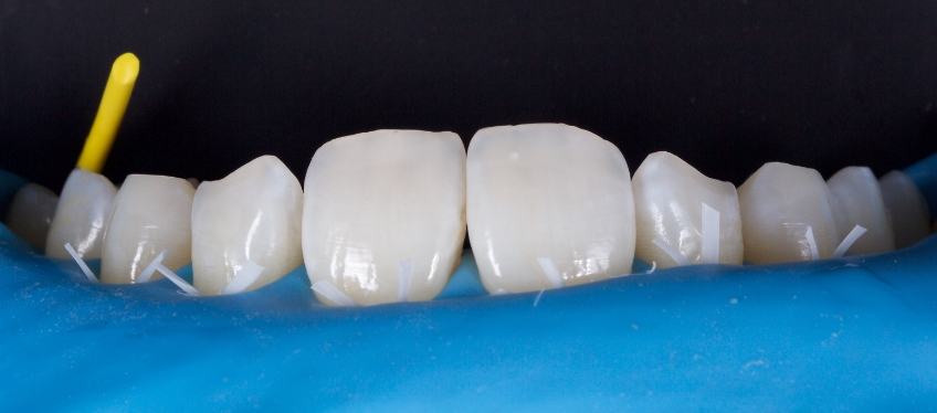 Figure 2: The teeth were isolated with a rubber dam and floss ties.