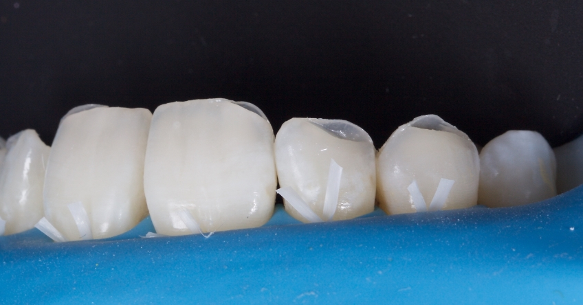 Figure 3: The missing tooth structure was replaced with direct composite resin in layers using the Natural Layering Approach, Dietschi.