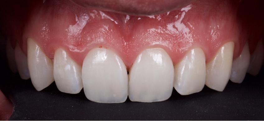 Figure 4: The immediate post-operative appearance after polishing.