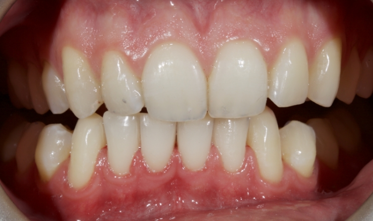Figure 6: The new occlusal scheme from canine guidance.