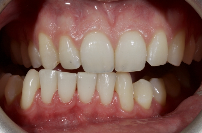 Figure 7: The new occlusal scheme from canine guidance to crossover.