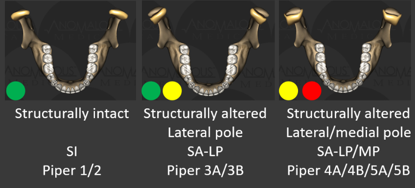 Types of temporomandibular jaw joints including structurally intact, structurally altered at the lateral pole and structurally altered at the lateral and medial pole.