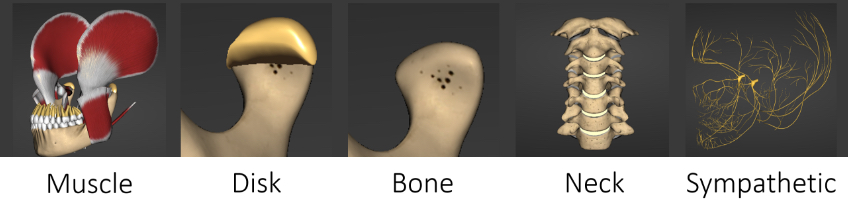 Digital mockup of jaw muscle, disk, bone, neck, and sympathetic system as part of the root causes of pain.