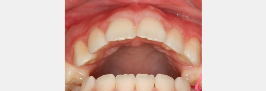 Inside of mouth to illustrate how at the tooth level, the upper and lower teeth fit against each other which stabilizes the occlusion.