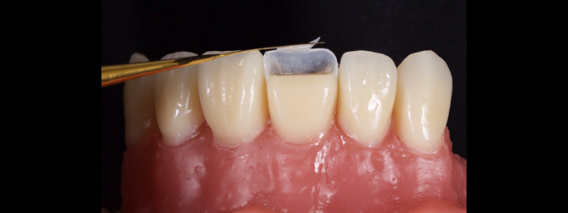 Figure 11: Realization of an incisal edge halo with a packable resin on a flat plastic.