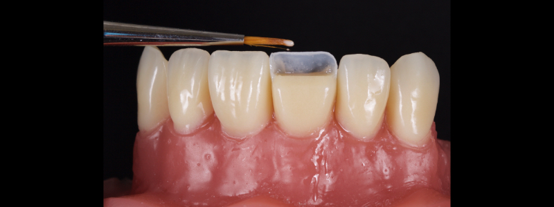 Figure 12: Realization of an incisal edge halo with a flowable resin on a #1 brush.