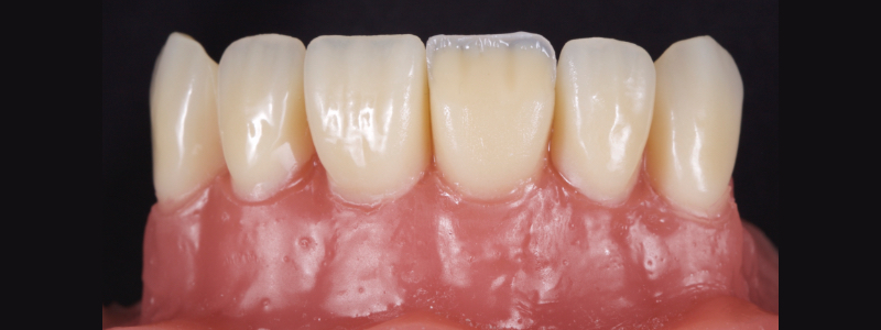 Figure 13: Dentin mamelons modeled with a posterior occlusal carver.