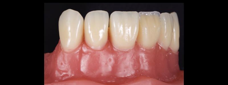 Figure 14: Under contoured dentin mass.