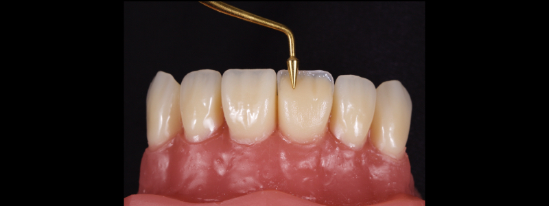 Figure 16: Dentin mamelons are formed with a posterior occlusal carver toward the incisal.