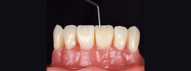 Figure 17: Dentin mamelons