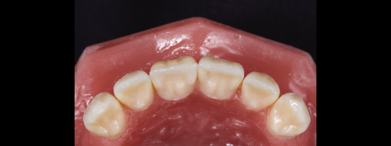Figure 18: Chromatic enamels built to full contour in the gingival and mid thirds but under contoured in the incisal third.