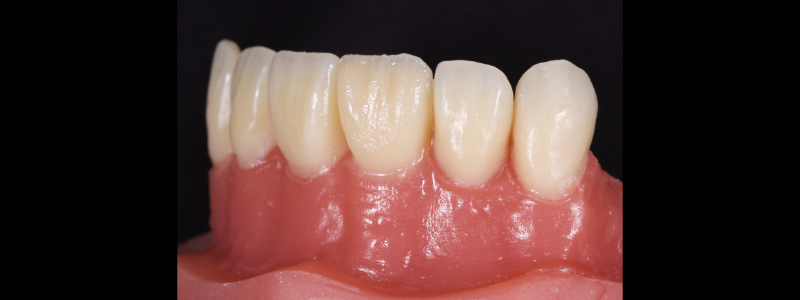 Figure 19: Lateral view of chromatic enamels built to full contour in the gingival and mid thirds but under contoured in the incisal third.