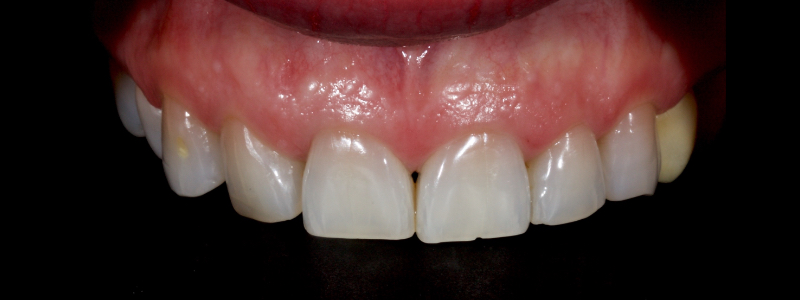 Figure 2: Anterior of anterior teeth with exposed dentin and around 25 percent loss of the coronal structure.