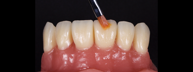 Figure 21: Achromatic enamel adapted and smoothed to the incisal third with a flat plastic and a #3 brush/modeling resin.