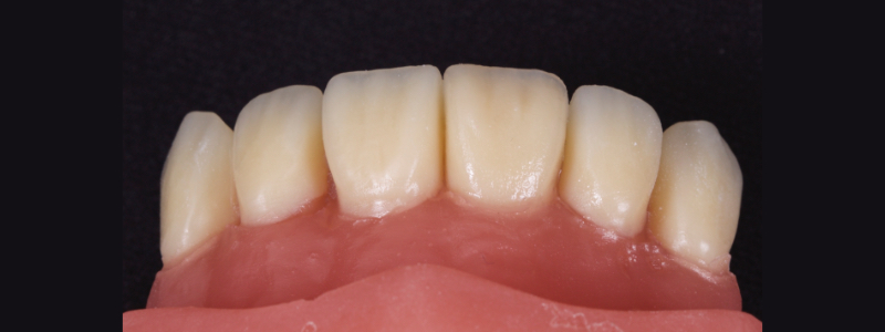 Figure 22: Achromatic enamel adapted and smoothed to the incisal third on the facial surface.