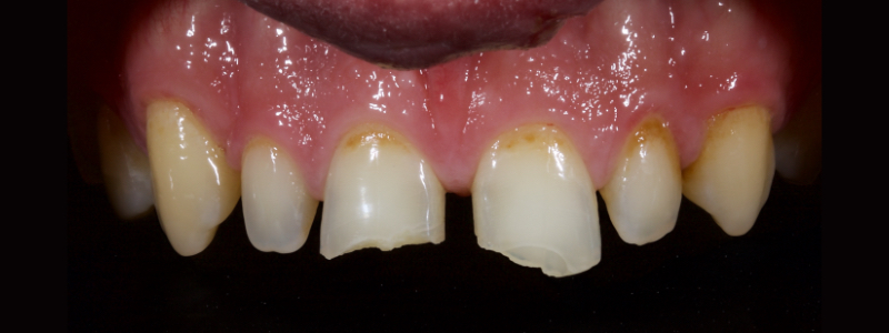 Figure 23: Ellis Class II fractures of both central incisors.