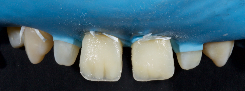 Figure 25: Dentin masses were placed.