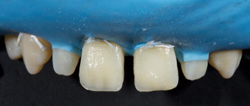 Figure 26: Dentin masses were overlayed with chromatic enamel.