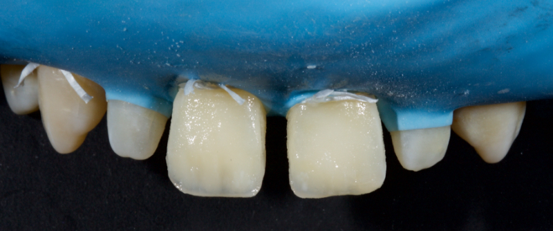 Figure 27: Opalescence effects alongside hypocalcifications were placed at the incisal edge.