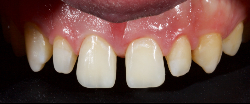 Figure 29: The restoration was polished to give a believable natural result in a clinically acceptable timeframe.