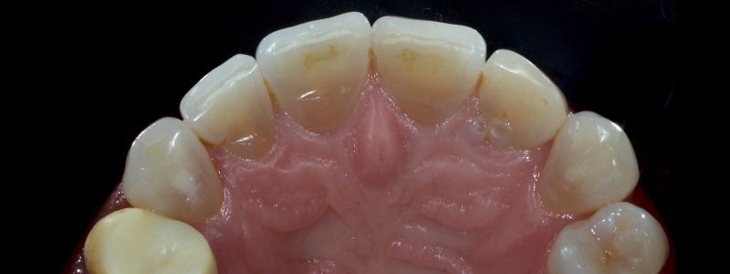 Figure 3: Anterior teeth with exposed dentin and around 25 percent loss of the coronal structure.
