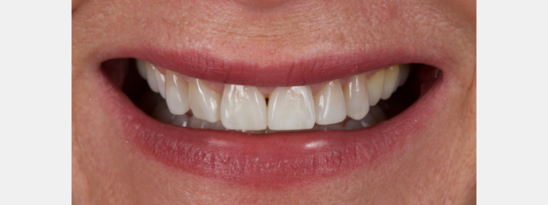 Figure 4: Restored anterior teeth after deprogramming with a splint and occlusal equilibration.