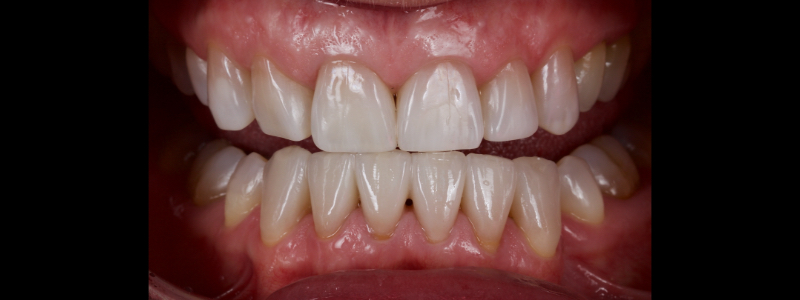 Figure 5: Direct composite resin restoration of the anterior teeth.